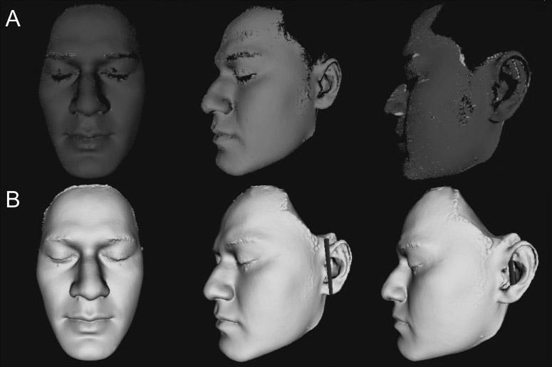 facial-scans